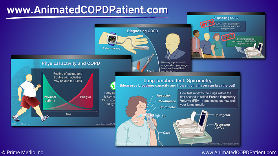 Slide Show - Diagnosis and Evaluation of COPD