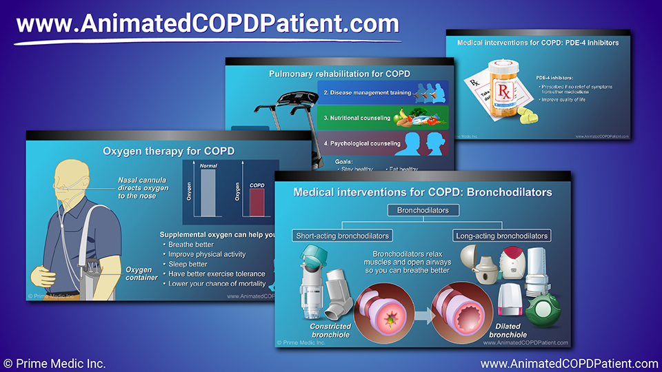 Slide Show - Management and Treatment of COPD