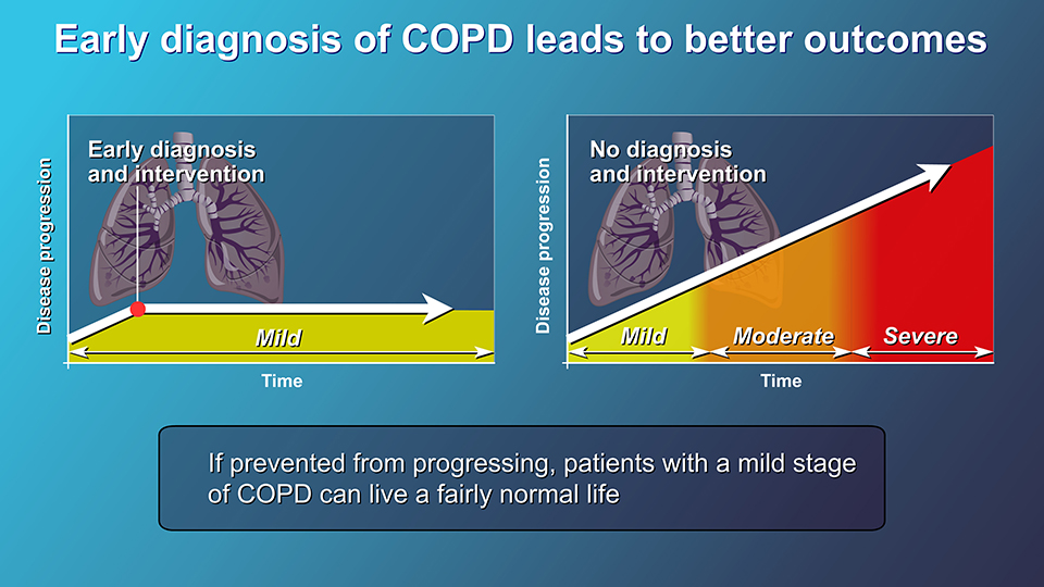 Animation - Diagnosis and Evaluation of COPD