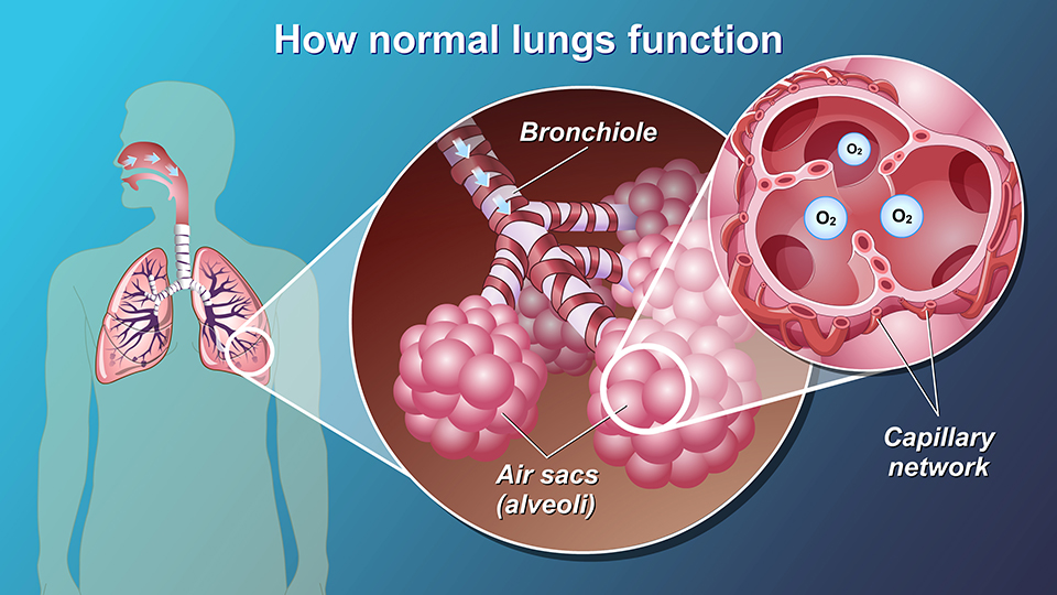 Animation - Understanding COPD